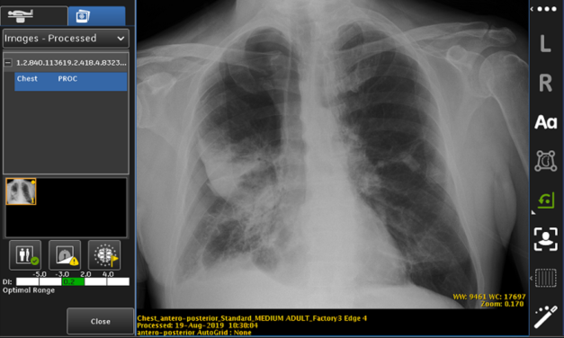 FDA approves GE Healthcare technology targeting collapsed lungs